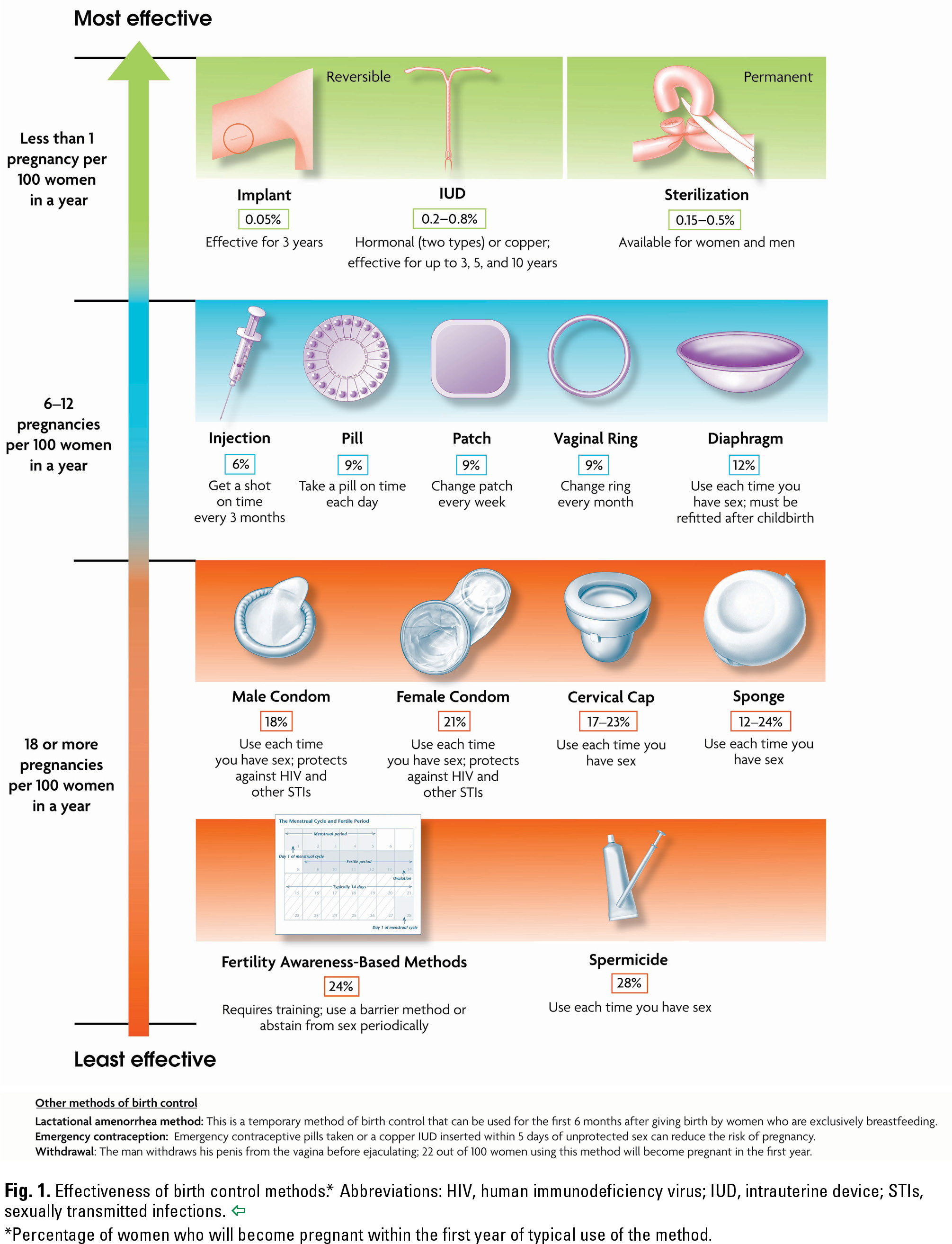 Fig. 1. Effectiveness of birth control methods.* Abbreviations: HIV, human immunodeficiency virus; IUD, intrauterine device; STIs, sexually transmitted infections