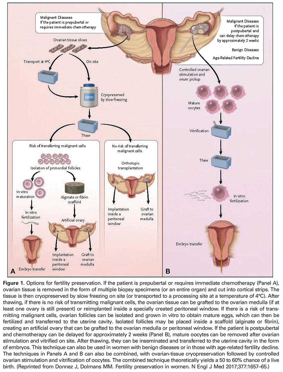 Figure 1. Options for fertility preservation. If the patient is prepubertal or requires immediate chemotherapy (Panel A), ovarian tissue is removed in the form of multiple biopsy specimens (or an entire organ) and cut into cortical strips. The tissue is then cryopreserved by slow freezing on site (or transported to a processing site at a temperature of 4°C). After thawing, if there is no risk of transmitting malignant cells, the ovarian tissue can be grafted to the ovarian medulla (if at least one ovary is still present) or reimplanted inside a specially created peritoneal window. If there is a risk of transmitting malignant cells, ovarian follicles can be isolated and grown in vitro to obtain mature eggs, which can then be fertilized and transferred to the uterine cavity. Isolated follicles may be placed inside a scaffold (alginate or fibrin), creating an artificial ovary that can be grafted to the ovarian medulla or peritoneal window. If the patient is postpubertal and chemotherapy can be delayed for approximately 2 weeks (Panel B), mature oocytes can be removed after ovarian stimulation and vitrified on site. After thawing, they can be inseminated and transferred to the uterine cavity in the form of embryos. This technique can also be used in women with benign diseases or in those with age-related fertility decline. The techniques in Panels A and B can also be combined, with ovarian-tissue cryopreservation followed by controlled ovarian stimulation and vitrification of oocytes. The combined technique theoretically yields a 50 to 60% chance of a live birth. (Reprinted from Donnez J, Dolmans MM. Fertility preservation in women. N Engl J Med 2017;377:1657–65.)