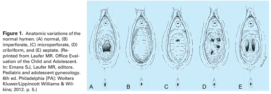 Figure 1. Anatomic variations of the normal hymen. (A) normal, (B) imperforate, (C) microperforate, (D) cribriform, and (E) septate. (Reprinted from Laufer MR. Office Evaluation of the Child and Adolescent. In: Emans SJ, Laufer MR, editors. Pediatric and adolescent gynecology. 6th ed. Philadelphia [PA]: Wolters Kluwer/Lippincott Williams & Wilkins; 2012. p. 5.)