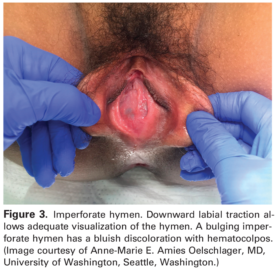 Figure 3. Imperforate hymen. Downward labial traction allows adequate visualization of the hymen. A bulging imperforate hymen has a bluish discoloration with hematocolpos. (Image courtesy of Anne-Marie E. Amies Oelschlager, MD, University of Washington, Seattle, Washington.)