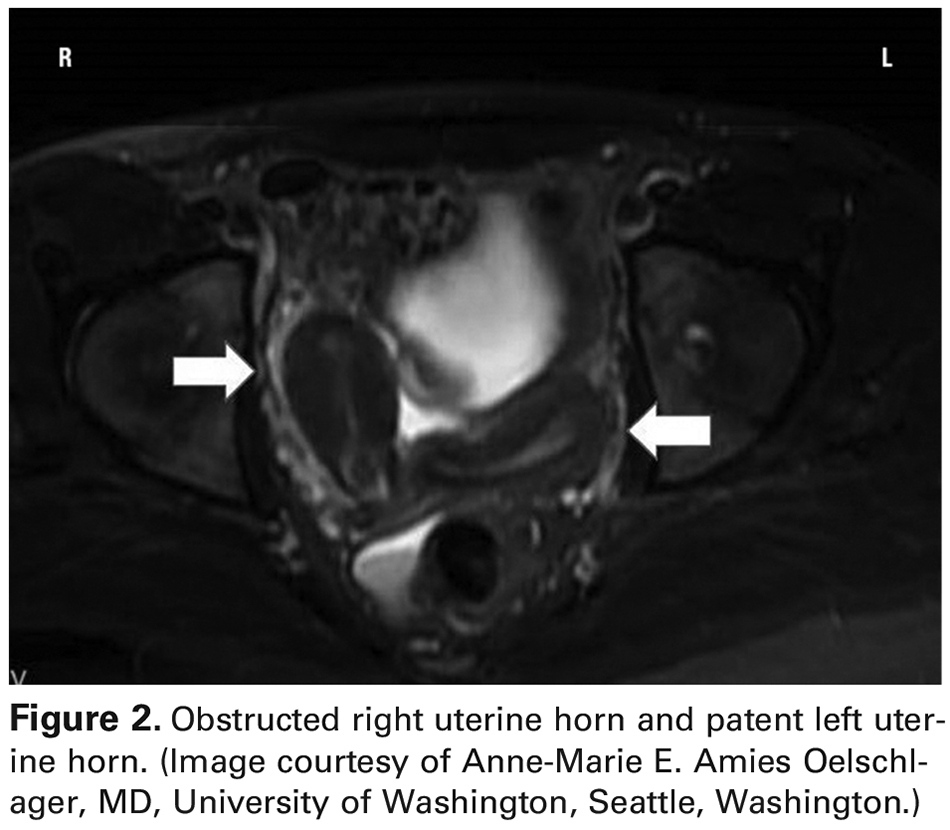 Figure 2. Obstructed right uterine horn and patent left uterine horn. (Image courtesy of Anne-Marie E. Amies Oelschlager, MD, University of Washington, Seattle, Washington.)