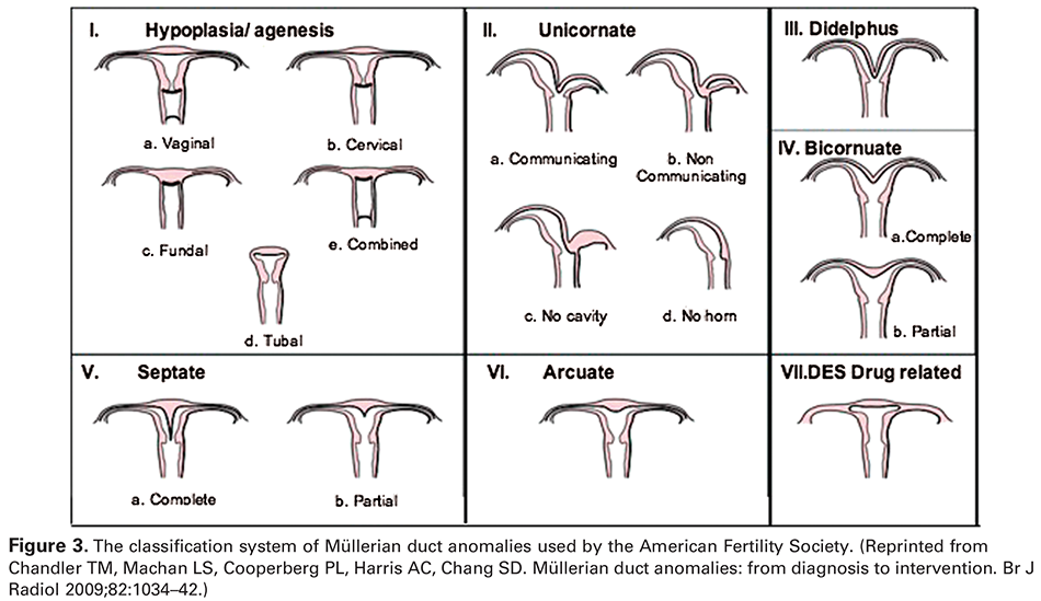 Figure 3. The classification system of Müllerian duct anomalies used by the American Fertility Society. (Reprinted from Chandler TM, Machan LS, Cooperberg PL, Harris AC, Chang SD. Müllerian duct anomalies: from diagnosis to intervention. Br J Radiol 2009;82:1034–42.)
