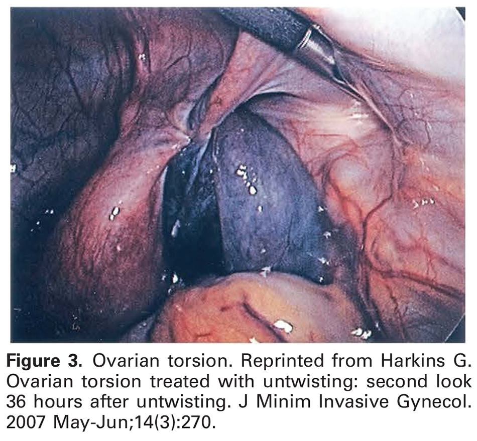 Figure 3. Ovarian torsion. Reprinted from Harkins G. Ovarian torsion treated with untwisting: second look 36 hours after untwisting. J Minim Invasive Gynecol. 2007 May-Jun;14(3):270.