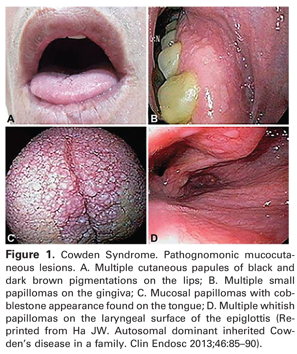 Figure 1. Cowden Syndrome. Pathognomonic mucocutaneous lesions. A. Multiple cutaneous papules of black and dark brown pigmentations on the lips; B. Multiple small papillomas on the gingiva; C. Mucosal papillomas with cobblestone appearance found on the tongue; D. Multiple whitish papillomas on the laryngeal surface of the epiglottis (Reprinted from Ha JW. Autosomal dominant inherited Cowden's disease in a family. Clin Endosc 2013;46:85–90).
