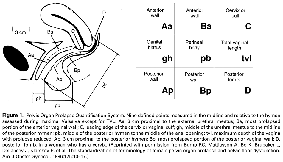 Figure 1. Pelvic Organ Prolapse Quantification System. Nine defined points measured in the midline and relative to the hymen assessed during maximal Valsalva except for TVL: Aa, 3 cm proximal to the external urethral meatus; Ba, most prolapsed portion of the anterior vaginal wall; C, leading edge of the cervix or vaginal cuff; gh, middle of the urethral meatus to the midline of the posterior hymen; pb, middle of the posterior hymen to the middle of the anal opening; tvl, maximum depth of the vagina with prolapse reduced; Ap, 3 cm proximal to the posterior hymen; Bp, most prolapsed portion of the posterior vaginal wall; D, posterior fornix in a woman who has a cervix. (Reprinted with permission from Bump RC, Mattiasson A, Bo K, Brubaker L, DeLancey J, Klarskov P, et al. The standardization of terminology of female pelvic organ prolapse and pelvic floor dysfunction. Am J Obstet Gynecol. 1996;175:10–17.)