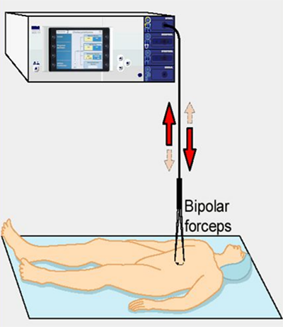 Electrosurgery current diagram.