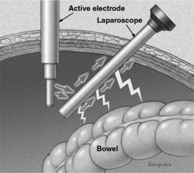 Electrosurgery direct coupling.