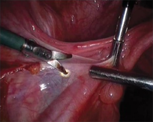 Monopolar device being used in surgery.